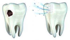 Реминерализация эмали и здоровье зубов