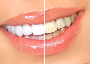 гель для отбеливания зубов опалесценс