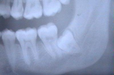 Пример дистопированного зуба