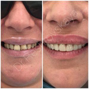 1-й этап комплексного лечения- Удаление зубов на верхней челюсти с внесением в лунки зубов костно-замещающего материала с БОТП(плазмой обогащенной тромбоцитами) , произведено одномоментное наложение иммидиат-протеза