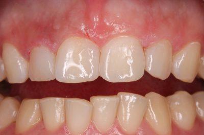 Реставрация фронтальных зубов (фото после лечения, доктор Ошаев Б.А.).