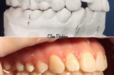 Ортодонтическое лечение верхней челюсти керамическими брекетами, нижней челюсти металлическими брекетами. Срок лечения 16 месяцев.