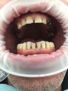 имплантация зубов и протезирование