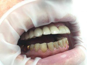 имплантация и протезировнаие фото после