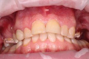 Верхняя челюсть: отсутствуют зубы слева - 15, 24 и 26. Справа установлены временные пломбы на 16 и 25 зуб;