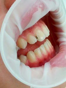 Кариозная полость на латерально-контактной поверхности до лечения. Вид сбоку.
