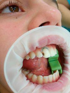 Под анестезией удалены нависающие края эмали.