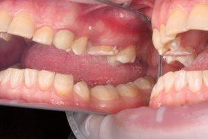 Установлена временная пломба на 16 зуб, рекомендована имплантация 15 зуба и протезирование 17-го(верхняя челюсть справа)