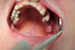 Зафиксированы металлокерамические коронки на 17 и 16 (верх челюсть справа) зубах , на 15 зубе ( верх челюсть справа) зафиксирована металлокерамическая коронка на имплантате. На 24 и 26 (верх челюсть слева) зубы установлены абатменты для фиксации металлокерамических коронок на имплантате. На 25 зубе (верх челюсть слева) зафиксирована металлокерамическая коронка..