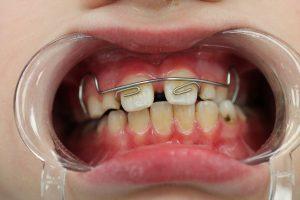 фото иссечение уздечки губы лазером