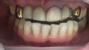 Жалобы на эстетику и функциональность зубов на верхней челюсти.
