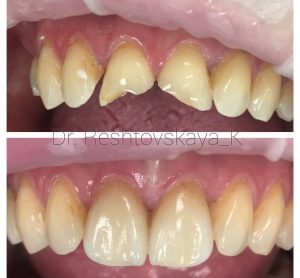 Фото до и после протезирования верхних, фронтальных зубов коронками E-max.
