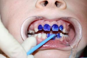 Серебрение молочных зубов у детей Отзывы покупателей 87