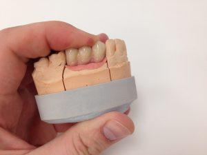 Верхняя челюсть, слева: 23, 24, 25. При атрофии(убыли) собственных мягких тканей, один из вариантов малоинвазивного замещения - это реставрация слизистой десны.