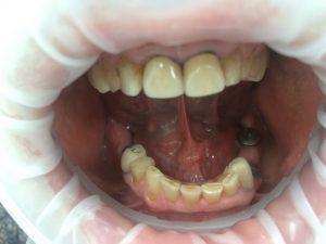 Проведена имплантация в районе 36, 46 и 34 зуба(стоимость по акции: сама операция и имплантаты системы Osstem – 20 т. руб. за одну единицу). Для правильного формирования и прилегания десны перед дальнейшим протезированием металлокерамикой зубы № 14, 17, 25 и 27 покрыты временными коронками(стоимость одной временной коронки 2 т.руб). В районе зубов № 34, 36 и 46 зафиксированы металлокерамические коронки на имплантатах(стоимость одной коронки 28 500 руб). На зубах № 14, 15, 16, 17, 25, 26, 27 и 35 установлены металлокерамические коронки (стоимость одной металлокерамической коронки 13000 руб).
