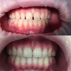 Реставрация фронтальных зубов (фото до и после лечения).