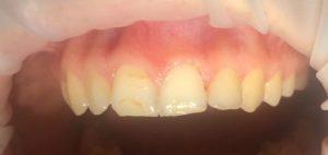 Жалобы на внешний вид фронтальных зубов.