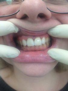 Виниры безметалловые на 4 верхних фронтальных зуба.