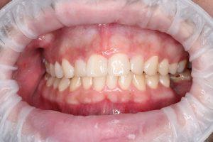 Реставрация фронтальных зубов (фото после лечения).