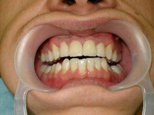 Металлокерамические коронки на 11, 12, 21, 22 зубы.