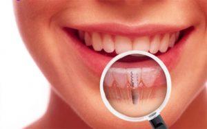 имплантация зубов по акции в Москве