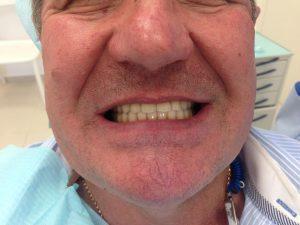 фото после имплантации и протезирования на имплантах