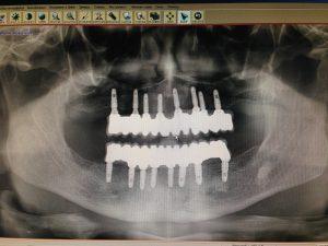 ортопантомограмма после имплантации под несъёмное протезирование