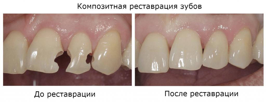 Прямая реставрация зубов