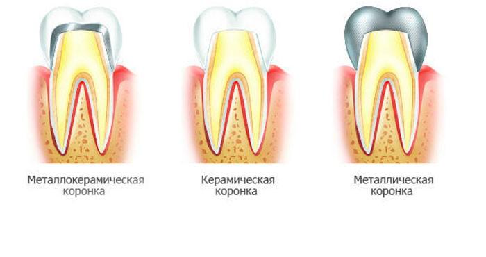 Реставрация зубов коронками