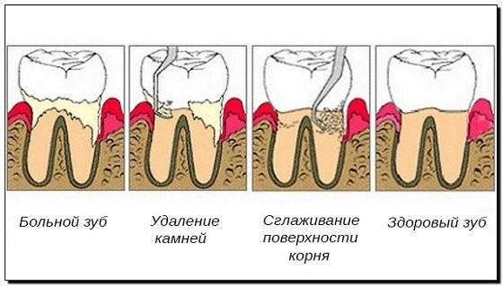 Этапы проведения пародонтологической чистки зубов