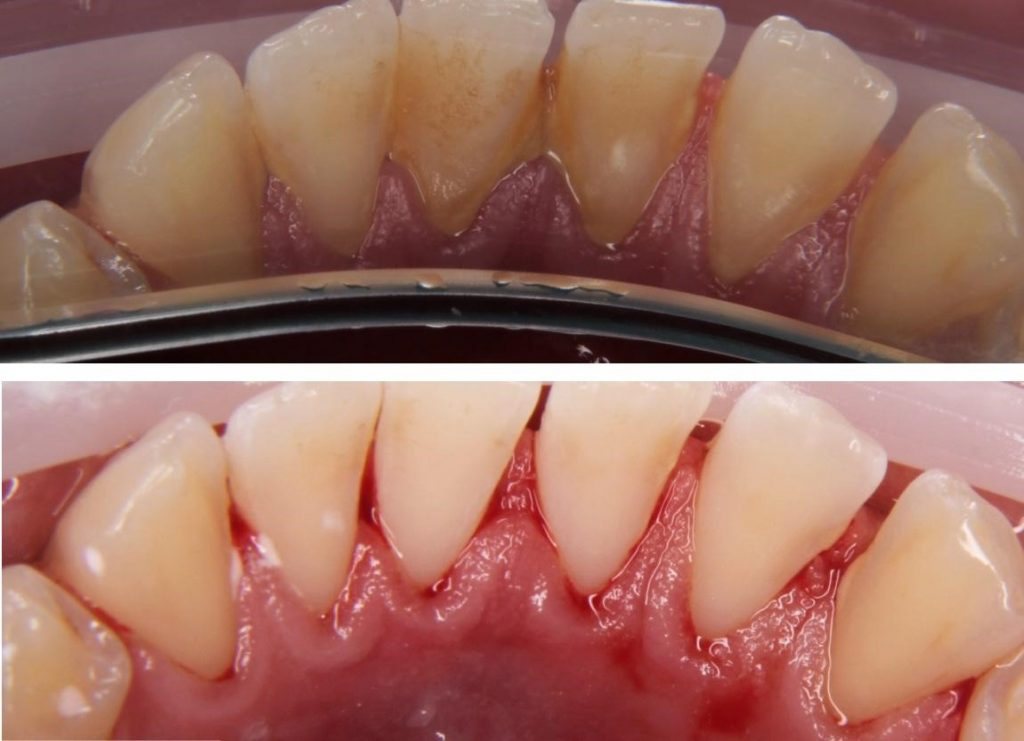 Показания к парандонтологической чисте зубов