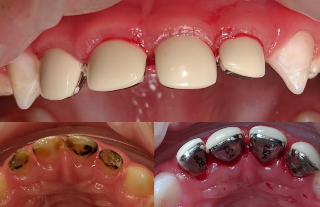 коронки на молочные зубы