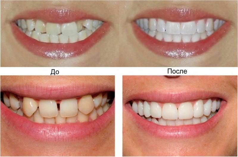 Микропротезирование и реставрация зубов